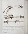 Western Manuscript 2585. Surgical instrument Wellcome L0024013.jpg