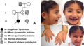 5-year-old Mexican girl with Angelman syndrome.png