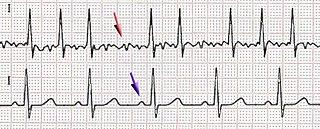 alterazione del ritmo cardiaco (aritmia) ad origine dagli atri del cuore