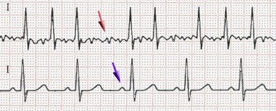 ECG of atrial fibrillation (top) and sinus rhythm (bottom). The purple arrow indicates a P wave, which is lost in atrial fibrillation.