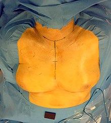 Glande thyroïde — Wikipédia