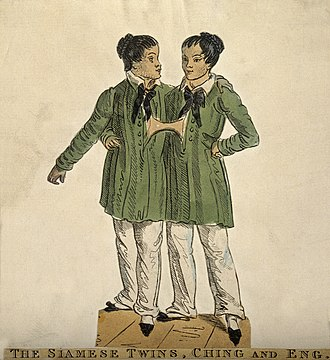 Chang and Eng Bunker - Colored etching of the young twins