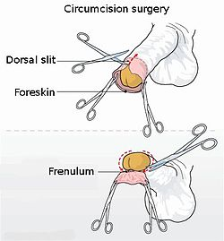Circumcision illustration.jpg