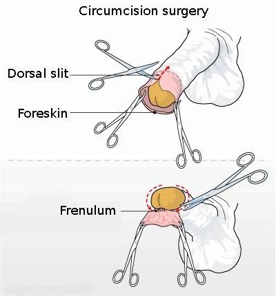 Circumcision illustration