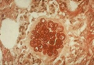 Coccidioidomycosis Spherule