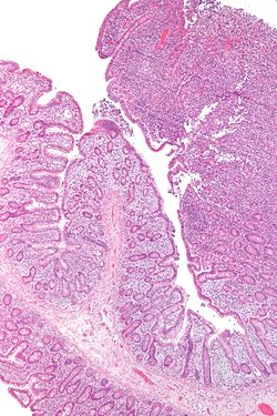 Enteropathy-associated T cell lymphoma - low mag.jpg