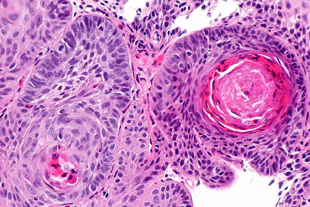 Image Result For Colon Cancer