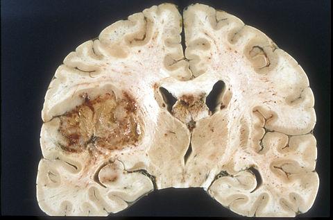 Glioblastoma macro
