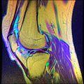 Knee MRI, T1T2PD 08.jpg