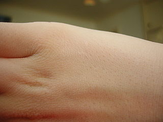 Scientists Created Diagnostic Skin to Monitor Patients