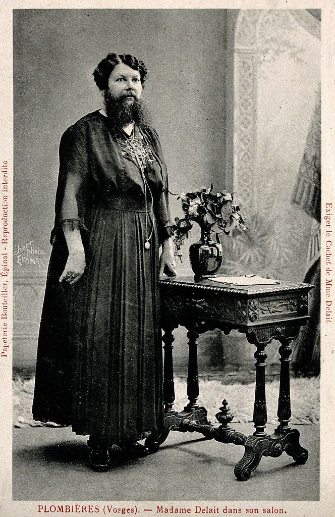 Filemadame Delait The Bearded Lady Of Plombires Head And Shou