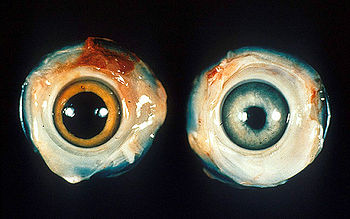 Left - normal chicken eye. Right - Eye of a ch...