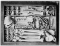 PSM V67 D195 Method of storing a human skeleton in tray.png