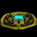 Pelvic MRI 06 08.jpg