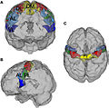 Precentral gyrus parcellation.jpg