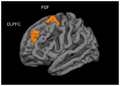 Significant clusters of the cortical thickness correlation with hours of video gaming per week.png
