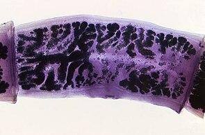 Proglottid (Taenia solium)