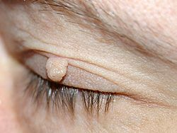 definition of fibroma