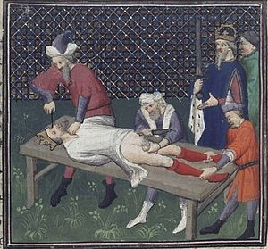 William III of Sicily - The torture of William III of Sicily, Giovanni Boccaccio: De Casibus Virorum Illustrium, 15th century ed.