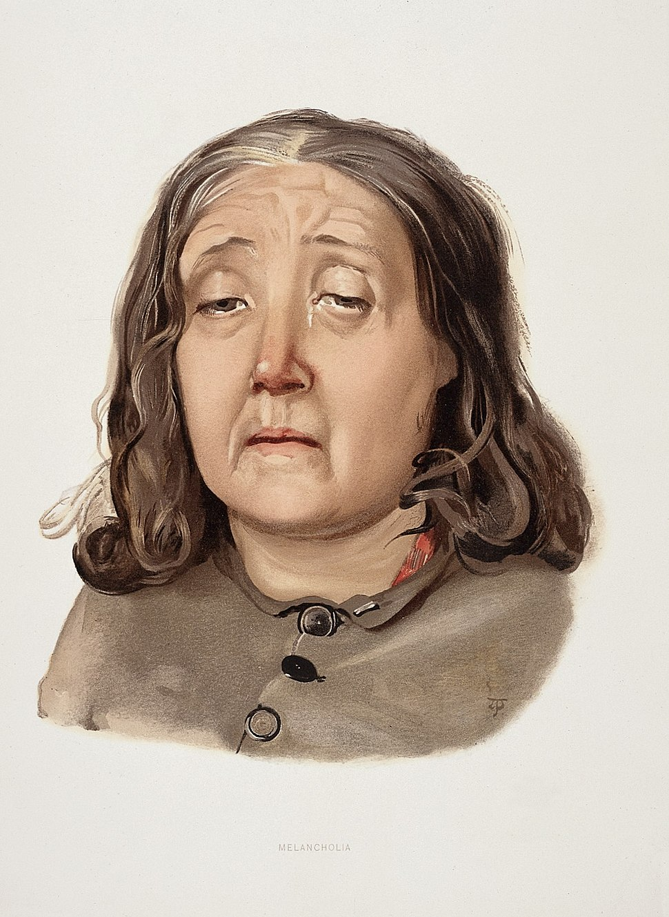 A woman diagnosed as suffering from melancholia. Colour lith Wellcome L0026686