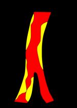 Цвб онмк по ишемическому типу