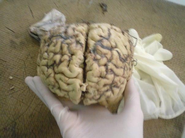 Brain dissection