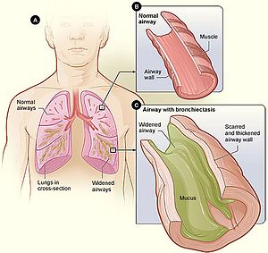 Bronchiectasis wikipedia figure a shows a cross section of the lungs with normal airways and widened airways figure b shows a cross section of a normal airway ccuart Gallery