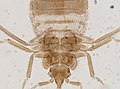 Cimex lectularius (YPM IZ 093693).jpeg