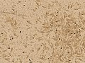 Demodex folliculorum (YPM IZ 093470).jpeg