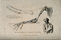 Diagrams illustrating how to set a broken arm. Stipple engra Wellcome V0016831.jpg