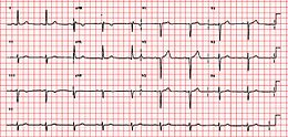 First Degree AV Block ECG Unlabeled.jpg