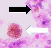 Histopathology of siderophage in chronic pulmonary congestion.jpg