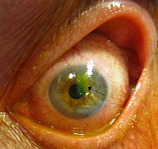 Human cornea with abrasion highlighted by fluorescein staining.jpg