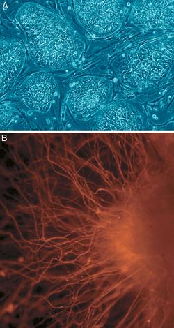 (A) μη διαφοροποιημένα κύτταρα - (Β) Νευρικά κύτταρα