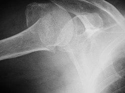 Humerus fracture 1300273.JPG