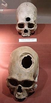 History of neurology and neurosurgery - Wikipedia