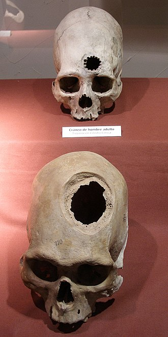 History of neurology and neurosurgery - Incan skulls showing various trepanation techniques