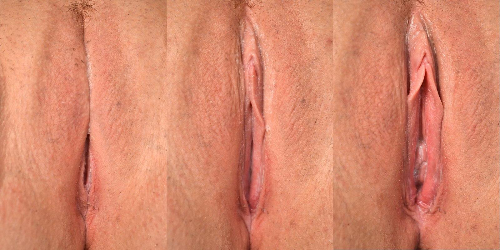 губы размера разного интимные почему