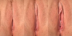 Labia becoming engorged with blood as female reaches arousal.jpg