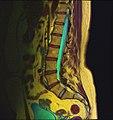 Lumbosacral MRI case 09 08.jpg