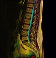 Lumbosacral MRI case 10 07.jpg