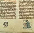 Man with cheek wound; surgeon sews head wound, 14th C Wellcome L0037333.jpg