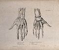Muscles and ligaments of the hand; two figures of écorché ha Wellcome V0008184ER.jpg
