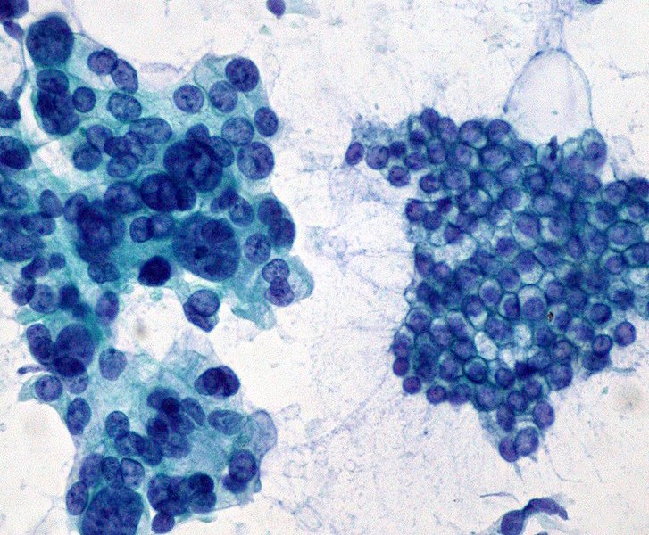 File:Pancreas FNA; adenocarcinoma vs. normal ductal epithelium (400x) (322383635).jpg
