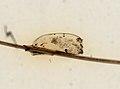 Pediculus humanus (YPM IZ 093602).jpeg