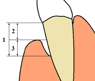 Gingival recession - 1: Total loss of attachment (clinical attachment loss, CAL) is the sum of 2: Gingival recession, and 3: Probing depth