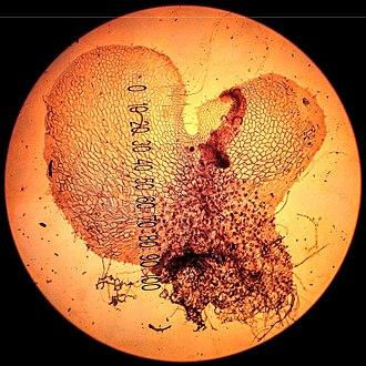 Prothallium - Prothallus (prothallium) of the fern Polypodium vulgare seen under a light microscope.