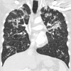 PulmonaryTBCor.png
