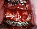 Rigid Internal fixation mandible.jpg
