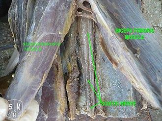 Semitendinosus muscle - Image: Semitendinosus muscle